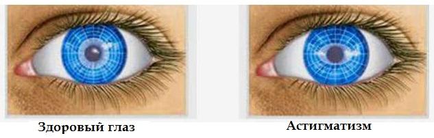 Зрение гимнастика для глаз бейтс
