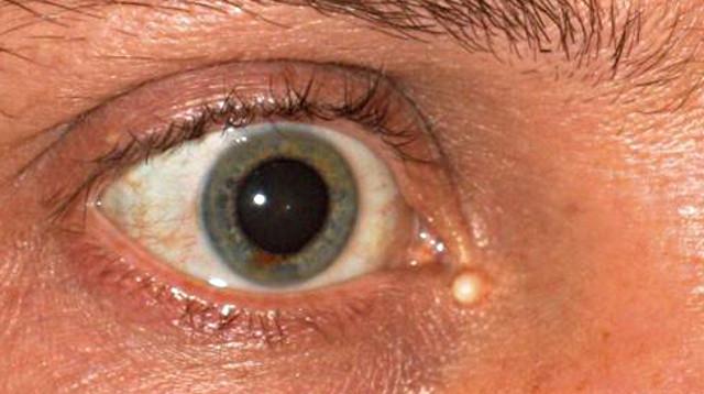 Атерома верхнего или нижнего века глаза