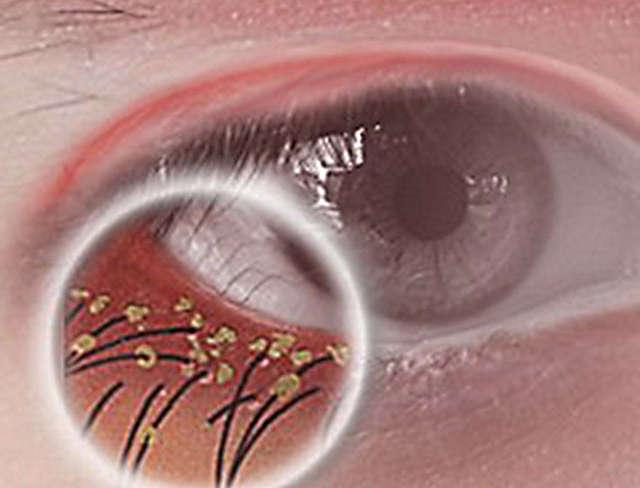 Блефароконъюнктивит глаз - острый и хронический