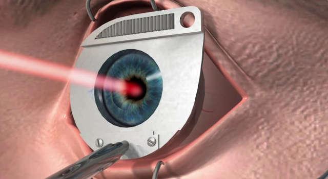 Лазерная коррекция зрения при близорукости - методы лазерной ...
