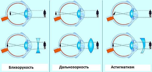 какие очки нужно носить при близорукости