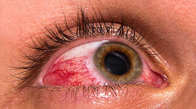 Болезни глаз у человека - воспалительные (инфекционные и ...