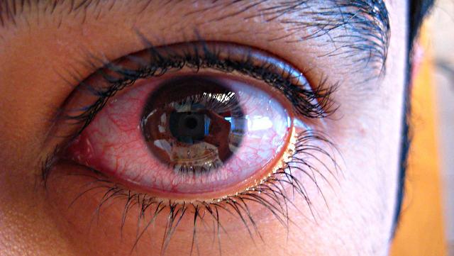Эписклерит глаза - симптомы