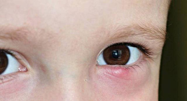 Халязион верхнего века у ребенка фото