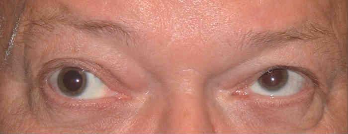 Офтальмоплегия глаза