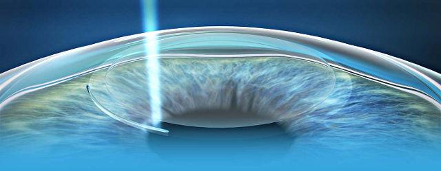 Фемто Супер Ласик (Femto Super Lasik) — операция лазерной ...