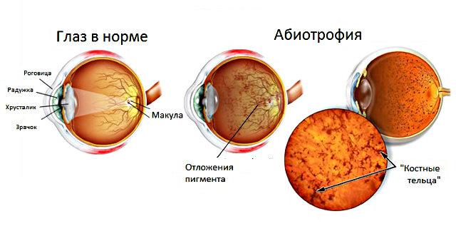 Пигментная (тапеторетинальная) абиотрофия сетчатки глаза ...