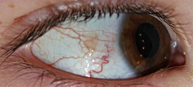 Пингвекула глаза и её эффективное лечение (капли и операция по ...