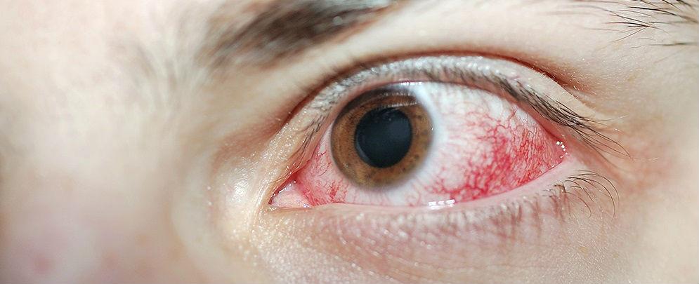 Воспаление глазного яблока