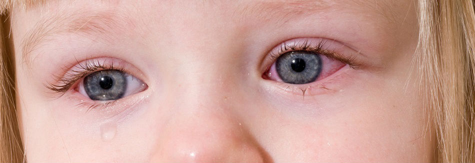 Воспаление глаза причины