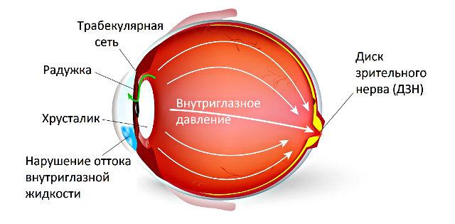 Офтальмогипертензия обоих глаз